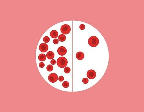 چگونه کم خونی در سیکل قاعدگی ایجاد می شود؟